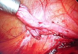 Laparoskopia usuniecie nieprawidłowej gonady