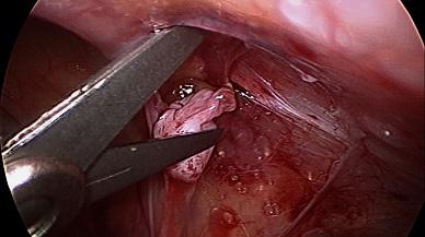 Operacja wodonercza techniką laparoskopową