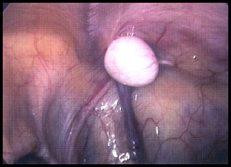 Operacje laparoskopowe